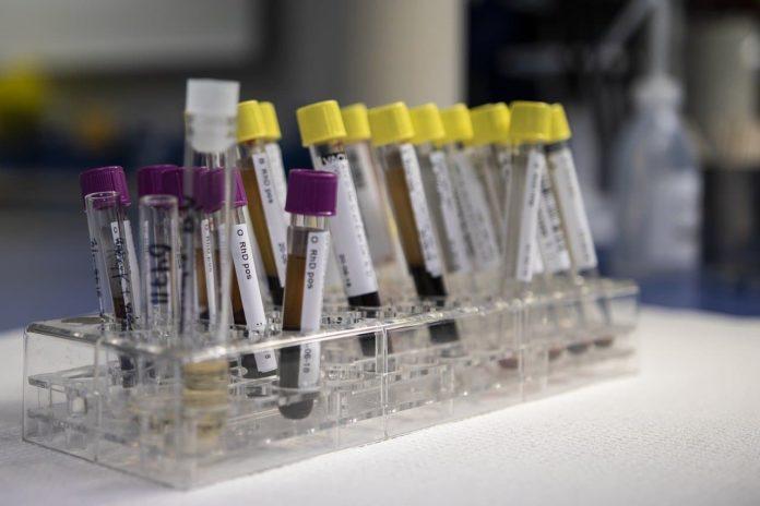 Coronavirus toscana test sierologici analisi sangue