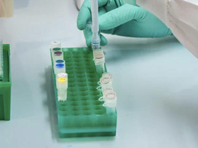 Test sierologico coronavirus: chi deve farlo e dove si può fare in Toscana