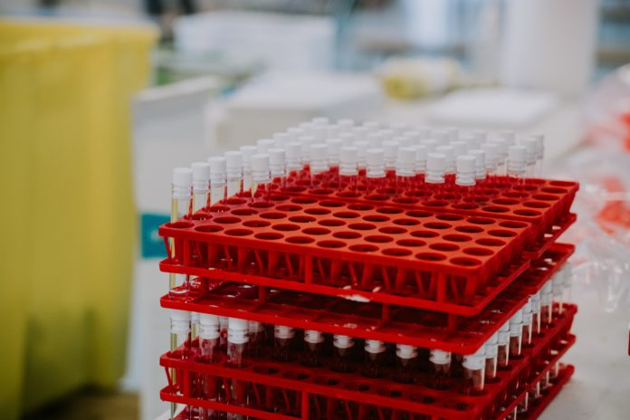 vaccini giani toscana seconda